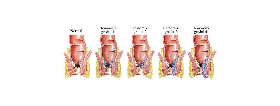 Hemoroizi tratament naturist